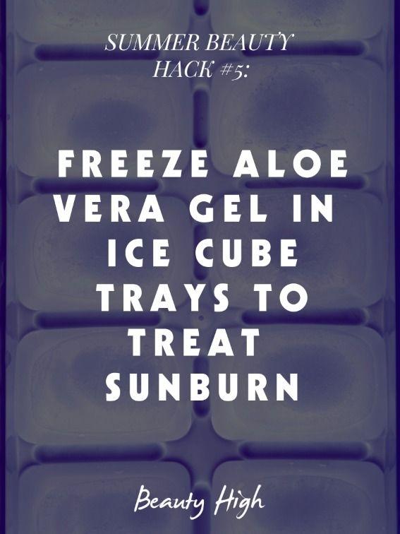 Treat your sunburn