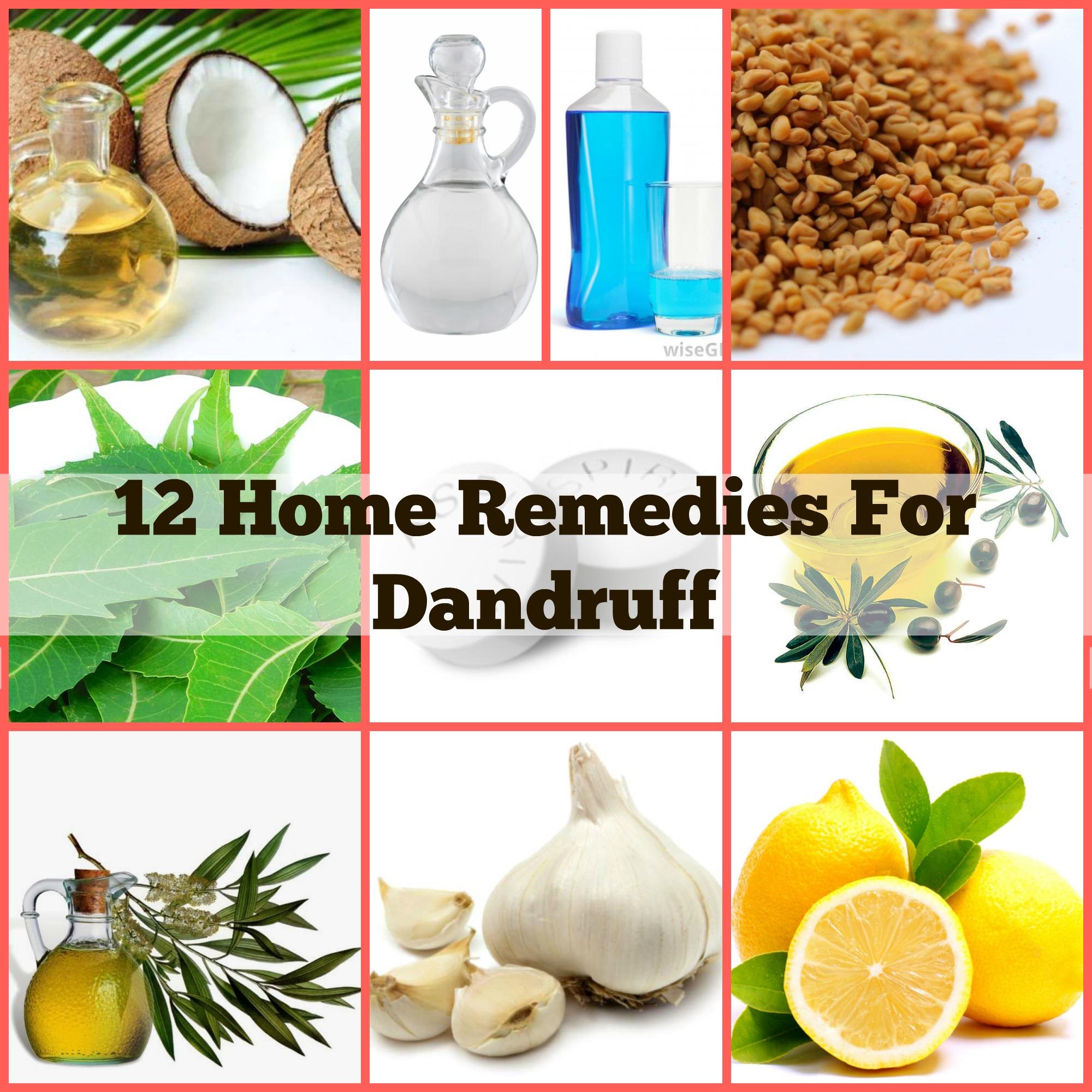 dandruff remedies makeupandbody blog